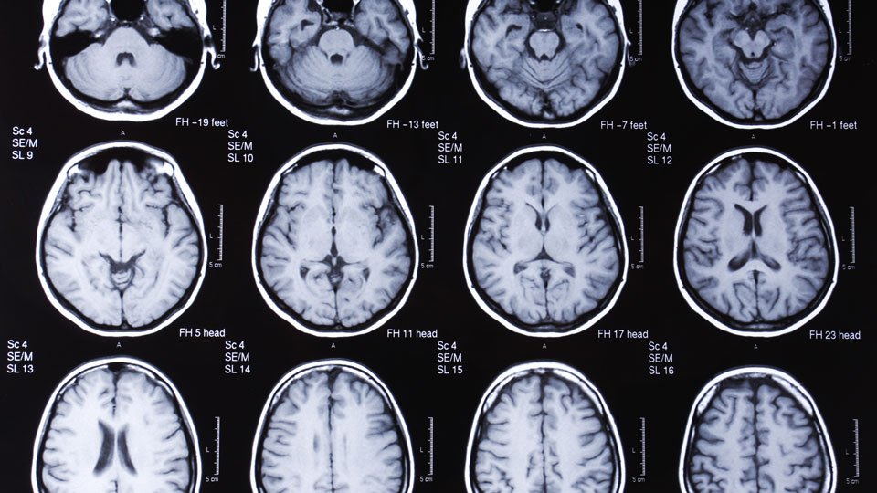 Brain-scan-images-pose-benefit-to-predicting-human-behavior
