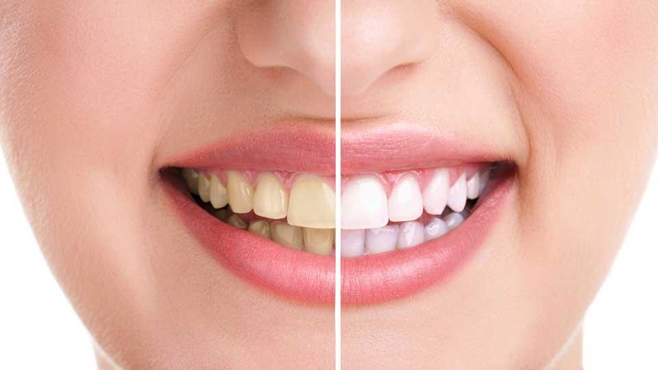 White-teeths-tips-tricks