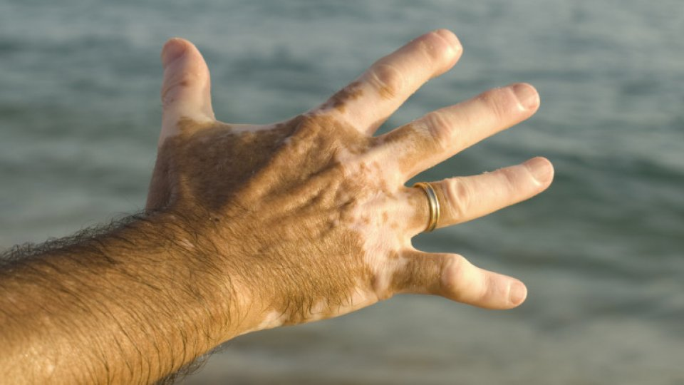 vitiligo-weisfleckenkrankheit104184762x428-1816448-1-cfn