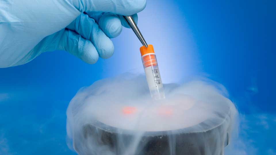 Woman-Freezing-Eggs